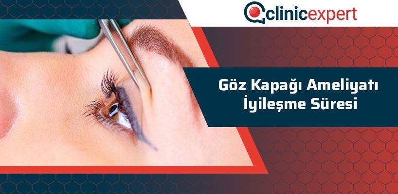 Göz Kapağı Ameliyatı İyileşme Süreci
