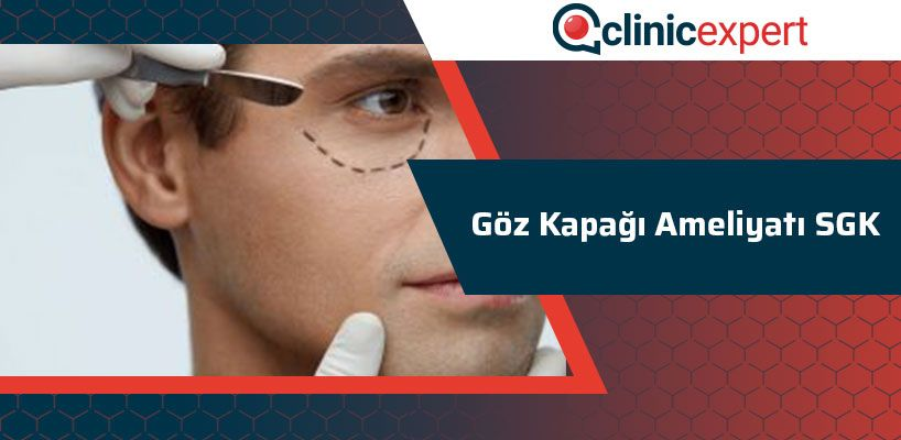 Göz kapağı ameliyatı SGK