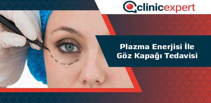 Plazma Enerjisi İle Göz Kapağı Tedavisi