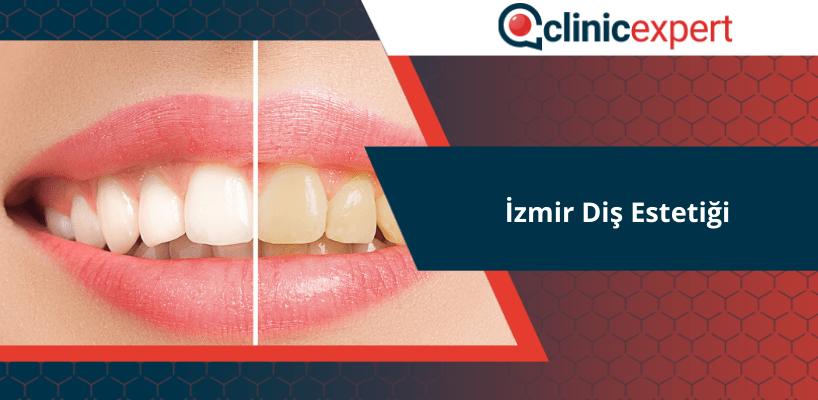 İzmir Diş Estetiği