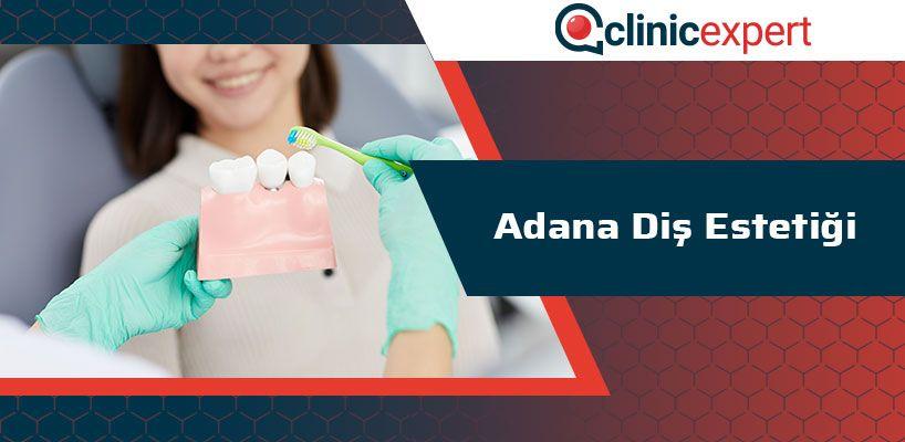 Adana Diş Estetiği