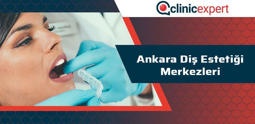 Ankara Diş Estetiği Merkezleri