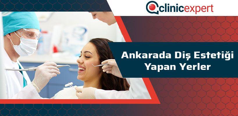 Ankara'da Diş Estetiği Yapan Yerler