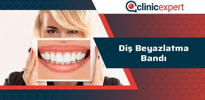 Diş Beyazlatma Bandı