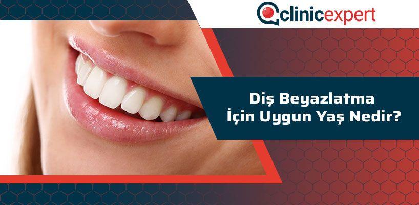 Diş Beyazlatma İçin Uygun Yaş Nedir?