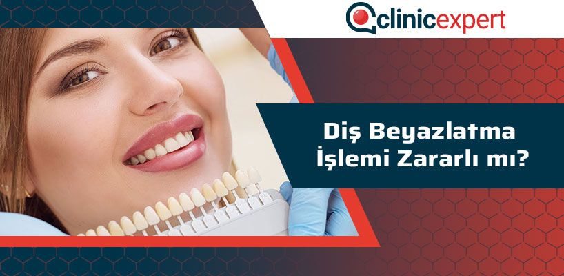 Diş Beyazlatma İşlemi Zararlı Mı?