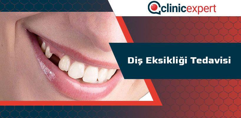 Diş Eksikliği Tedavisi
