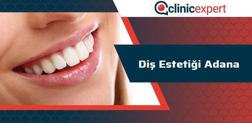 Diş Estetiği Adana