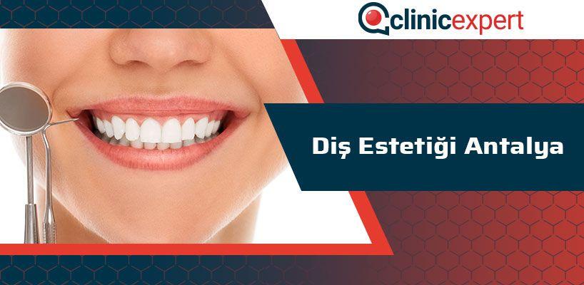 Diş Estetiği Antalya