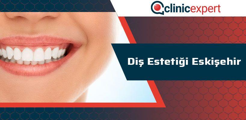 Diş Estetiği Eskişehir