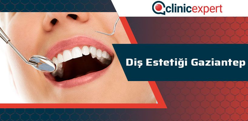 Diş Estetiği Gaziantep