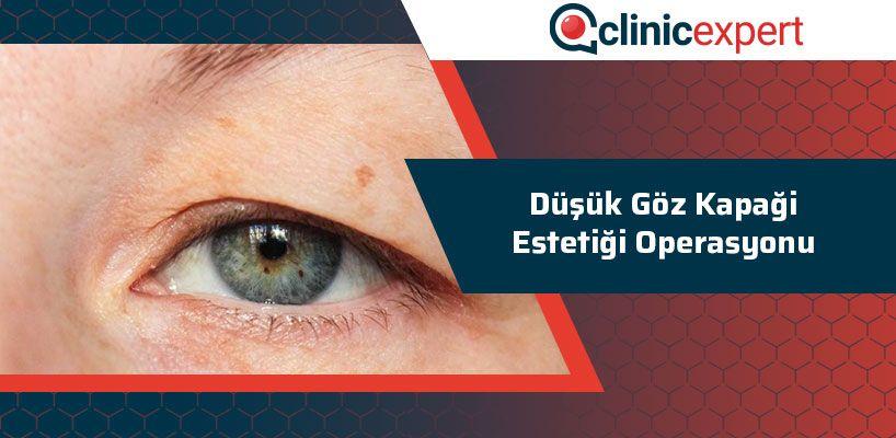 Düşük Göz Kapağı Estetiği Operasyonu