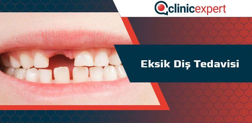 Eksik Diş Tedavisi