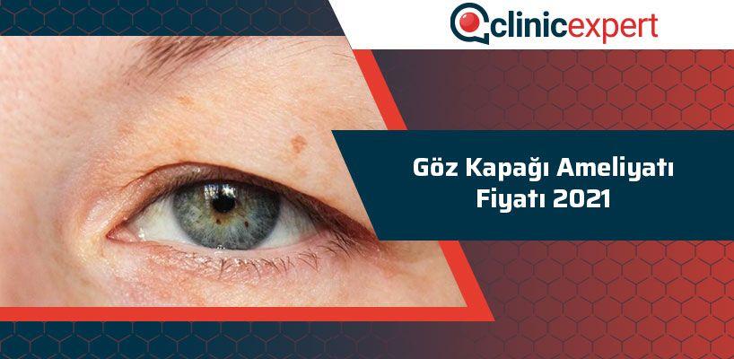 Göz Kapağı Ameliyatı Fiyatı 2021
