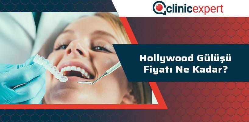 Hollywood Gülüşü Fiyatı Ne Kadar?