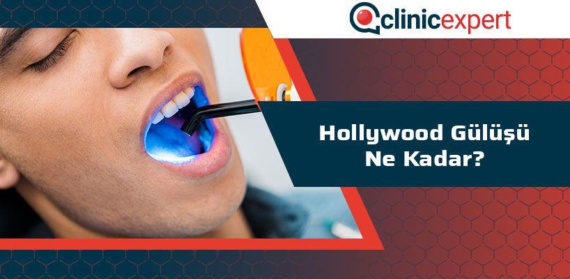 Hollywood Gülüşü Ne Kadar?