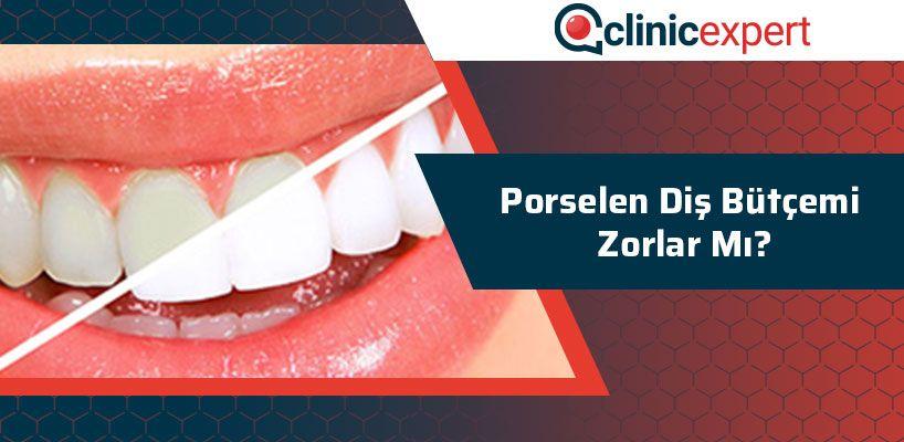 Porselen Diş Bütçemi Zorlar Mı?
