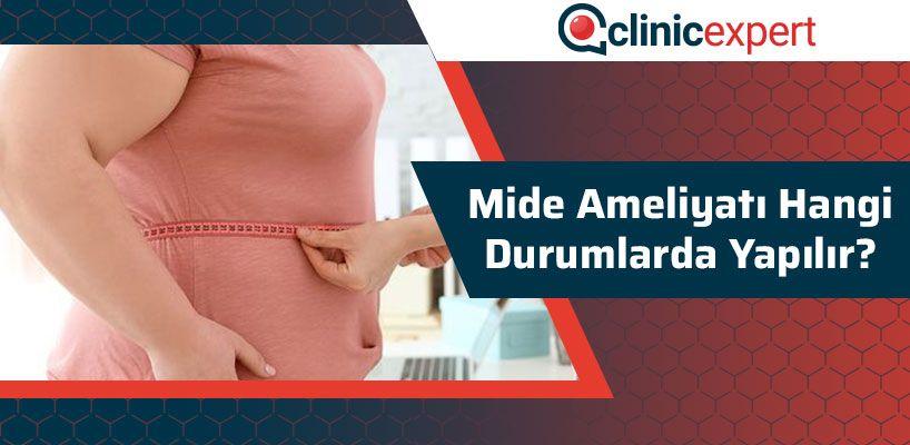 mide-ameliyati-hangi-durumlarda-yapilir-cln